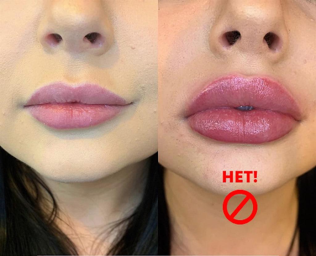 помилки при збільшенні губ