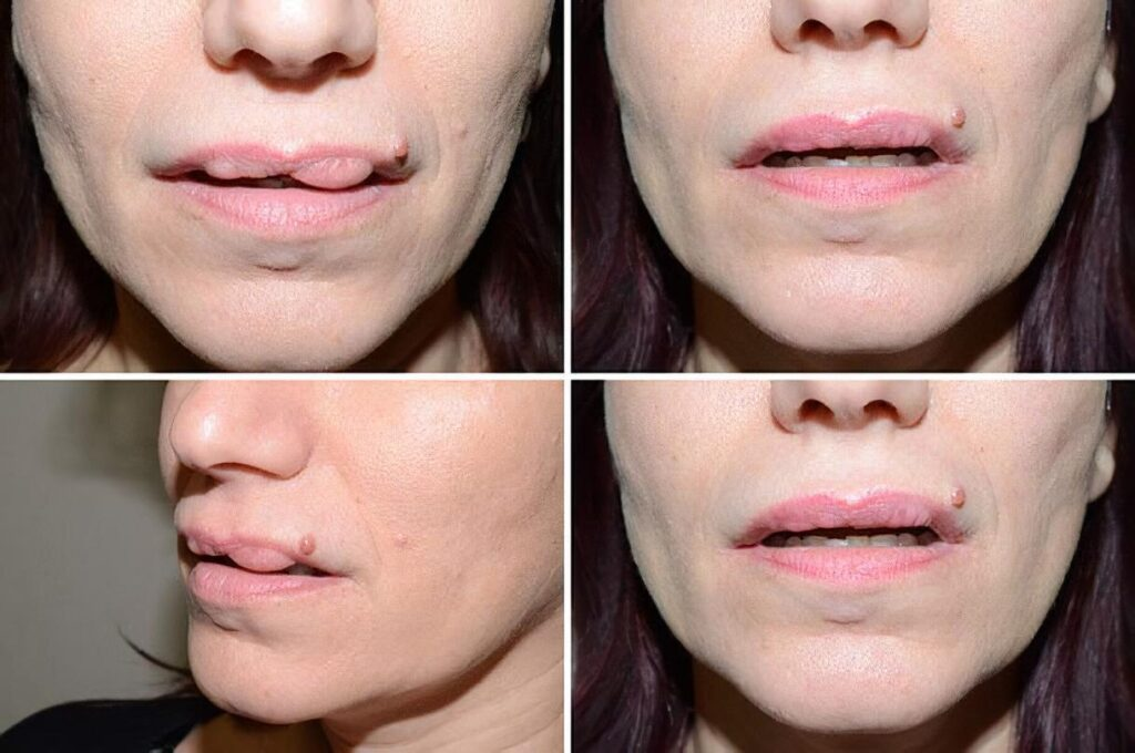 Невдале збільшення губ